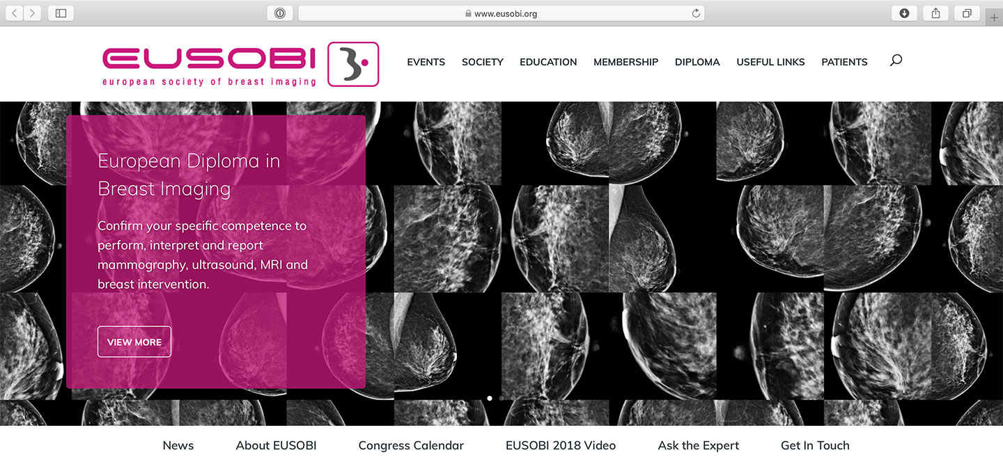 European Society of Breast Imaging (EUSOBI)