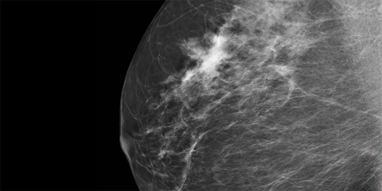 Mamo Cz False Positive Mammograms May Indicate Increased Risk