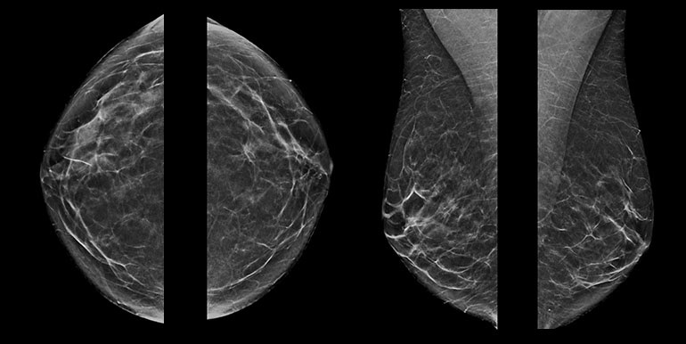 Breast tomosynthesis is not significantly different from standard digital mammography